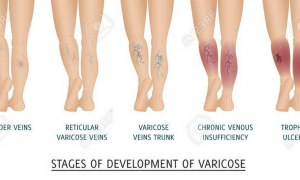 OMG! Did You Know That Varicose Veins Has A Medicine In Your Kitchen?