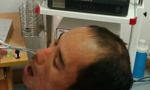 Doctor Retrieves Strange Creature From Man's Nose