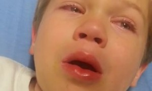 Kid wakes up from surgery - hilariously describes his experience