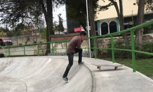Teeth Go Flying After Skateboard Fail
