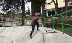 Teeth Go Flying After Skateboard Fail