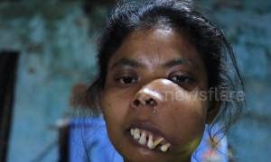Indian woman with facial tumour branded 'monkey girl' launches crowdfunding campaign for surgery