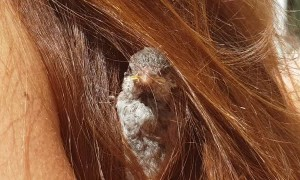 Sparrow Nests in Woman's Hair