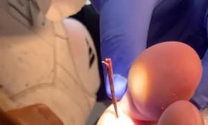 Massive Splinter Removed from Foot